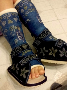 My granddaughter chose navy blue casts to match her school uniform.